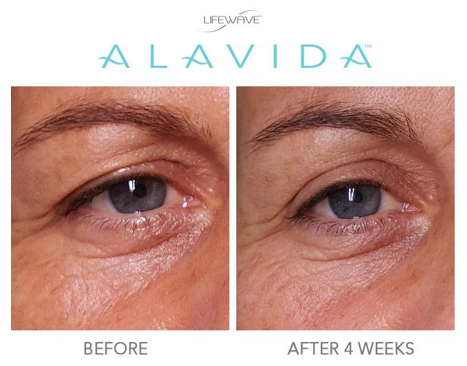 alavida-4 semaines